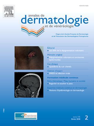 Annales De Dermatologie