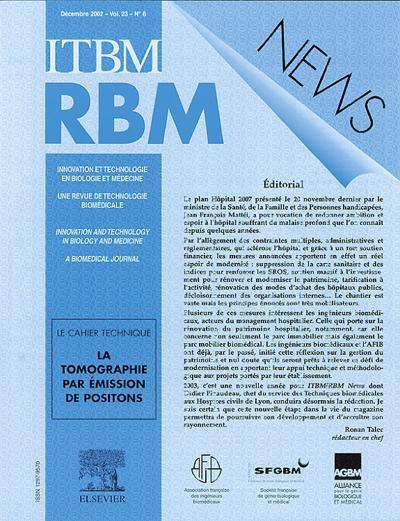 IRBM NEWS (photo)